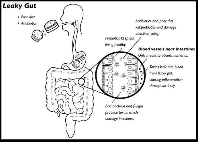 Leaky-Gut-Syndrome_Diagram-w_border